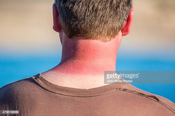 Red sunburnt neck from too much sun. Australia.