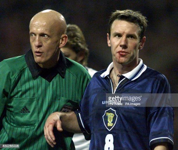 Referee Pierluigi Collina insists that Scotland's Craig Burley is treated for a cut lip during the 2000 European Championships qualifying football...