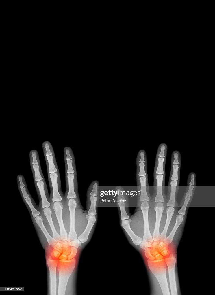 Repetitive strain injury : Stock Photo