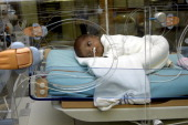 Reportage in the neonatal unit of RobertDebre hospital in Paris France Premature baby in an incubator with a feeding tube