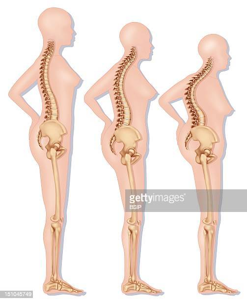 Representation Of The Modification Of The Silhouette Linked To Osteoporosis Vertebral Compression On The Left Silhouette Of A Young Woman Straight...