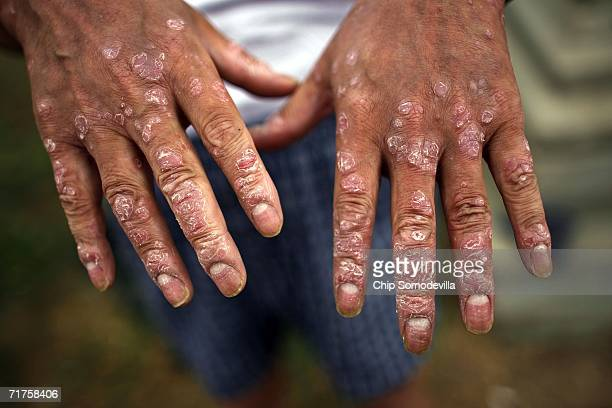 Republic of Korea Armed Forces veteran Wong Sup Um 59 of Seoul who suffers from skin lesions that he says is due his exposure to Agent Orange while...