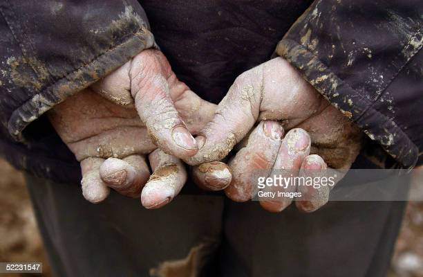 Rescuers hands are seen caked in earth from looking for survivors amongst the remains of buildings on February 23 2005 in the Zarand region of Iran...