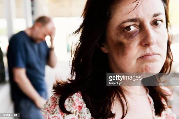 Resentful bruised woman with desperate looking man in  background