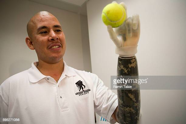 Retired US Army Sergeant Juan Arredondo a veteran of the war in Iraq holds a tennis ball while wearing the world's first bionic hand known as iLimb...