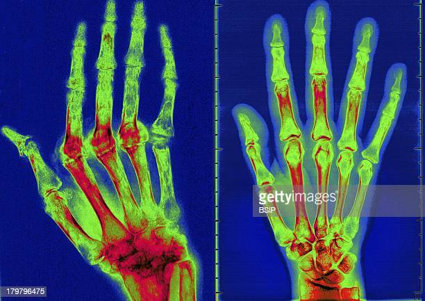 Rheumatoid Arthritis XRay The Condition Has Caused Ankylosis And Bone Deformation Of The Right Hand Mainly Women Are Affected By This Disease Which...