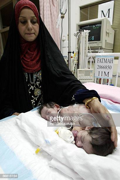 Iraqi Majda Rashid pats her conjoined twins at the National Guard's King Abdul Aziz Medical City in Riyadh 07 February 2006 An operation to separate...