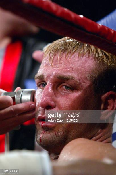 Rob Calloway receives treatment to his jaw after breaking it during the fight