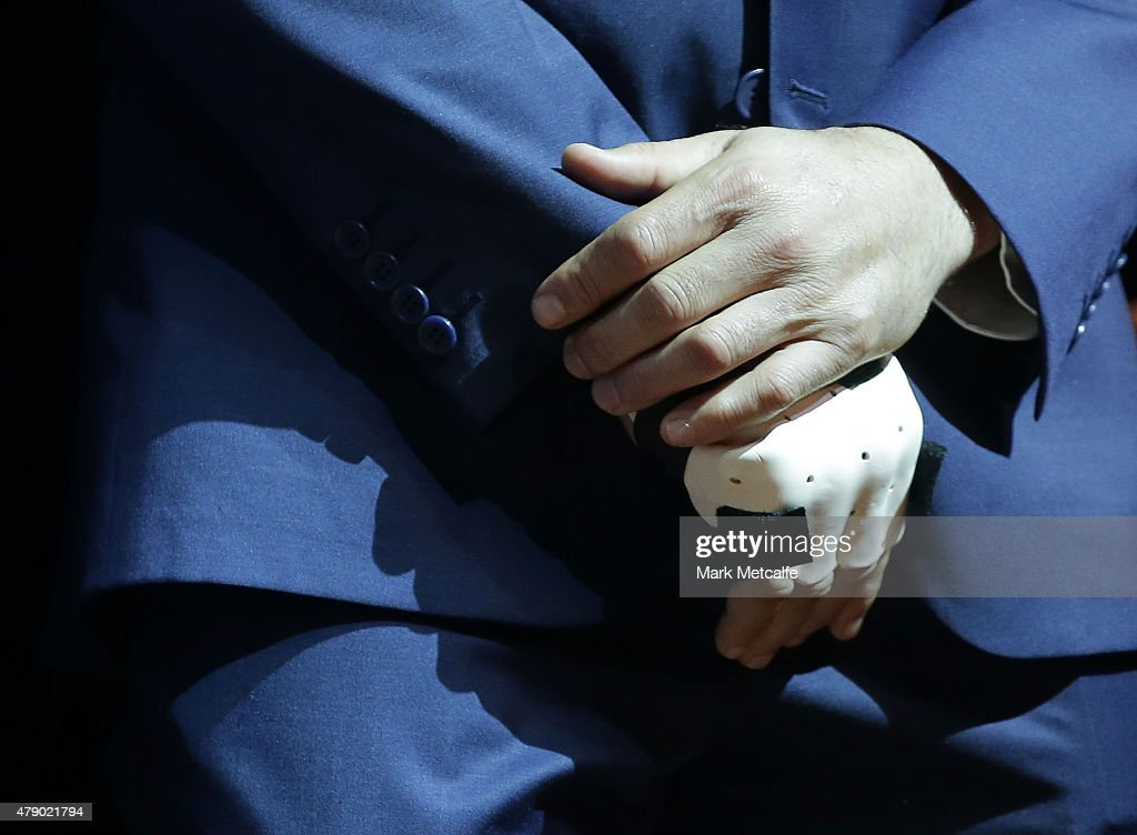 Robbie Farah holds his injured hand during the New South Wales Blues State of Origin team announcement at Revesby Workers Club on June 30, 2015 in Sydney, Australia.