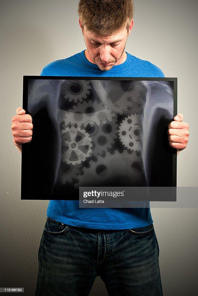 Robot X-Ray : Stock Photo