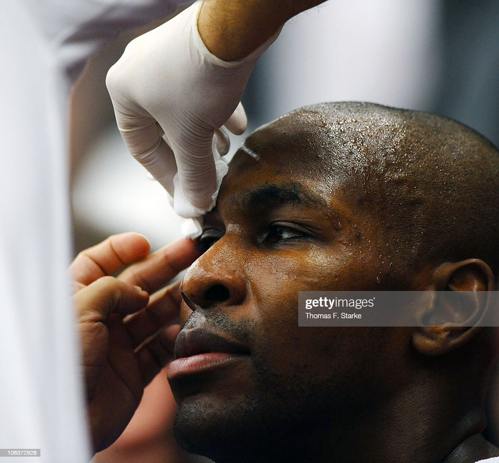 Roger Powell of Frankfurt receives treatment during the Bundesliga game between Artland Dragons Quakenbrueck and Deutsche Bank Skyliners at the Artland Arena on October 30, 2010 in Quakenbruck, Germany.