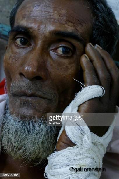 Rohingya patients wait for treatment at Coxs Bazar Hospital Chittagong September 21 2017Nearly 400000 Rohingya refugees have fled into Bangladesh...
