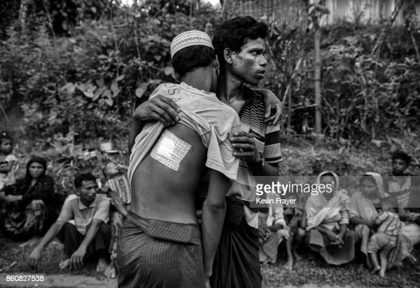 COX'S BAZAR BANGLADESH SEPTEMBER 24 A Rohingya refugee man who was shot in the back by the Myanmar army is helped by a relative after crossing the...