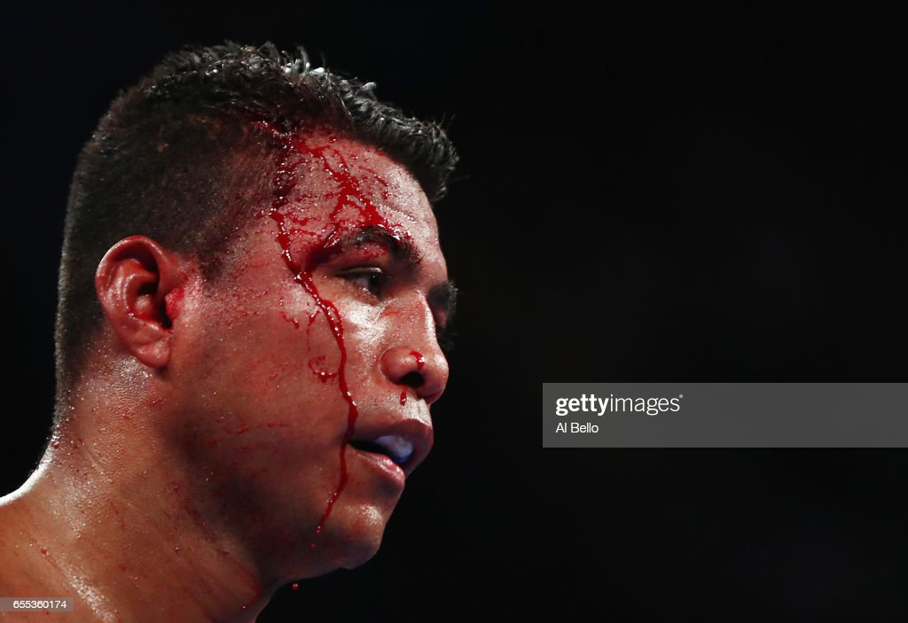 Roman 'Chocolatito' Gonzalez is cut against Srisaket Sor Rungvisai during their Championship fight for Gonzalez's WBC junior bantamweight title at Madison Square Garden on March 18, 2017 in New York City.