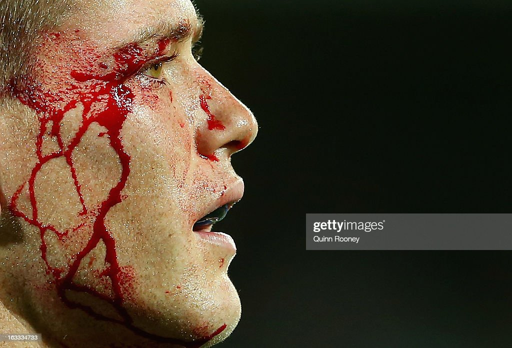 Rory Sidey of the Rebels bleeds from the eye during the round 4 Super Rugby match between the Rebels and the Reds at AAMI Park on March 8, 2013 in Melbourne, Australia.