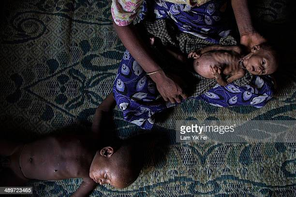 Rosheda Bagoung holds her malnourished child inside a tent at Dar Paing refugees camp on May 10 2014 in Sittwe Burma 150000 Rohingya IDP are...