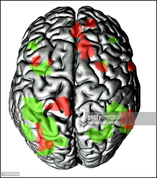 Rudiger Gamm mental calculation prodigy in France on March 07 2001 3D image of Rudiger Gamm's brain In green are the areas activated by during...