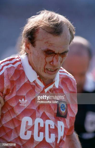 Russian footballer Vagiz Khidiyatullin pictured with blood running down his face from a cut above his eye during play for the Soviet Union team in...