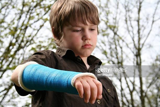 Traurige Junge mit gebrochenen arm in Blau Gipsverband