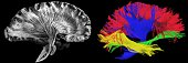 Sagittal, side view. Left - picture of a human brain dissection by a neuroanatomist, Right - reconstructed fibers by tractography