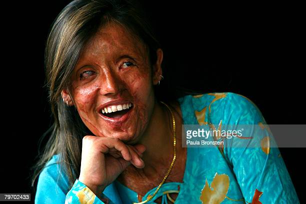 Saira Liaqat a victim of acid violence who was burned 4 years ago poses in Islamabad June 11 2007 Saira is from Lahore and was attacked with acid...