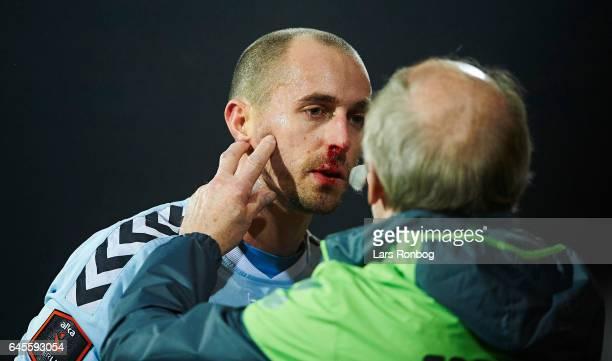 Sakari Mattila of Sonderjyske having a blood nose during the Danish Alka Superliga match match between Sonderjyske and Brondby IF at Sydbank Park on...