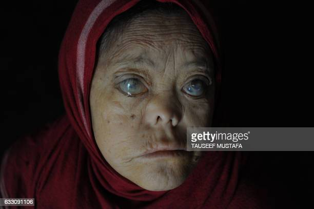 Sakina a leprosy patient sits in her room at the leprosy hospital in downtown Srinagar on January 302017 World Leprosy Day is observed on January 30...