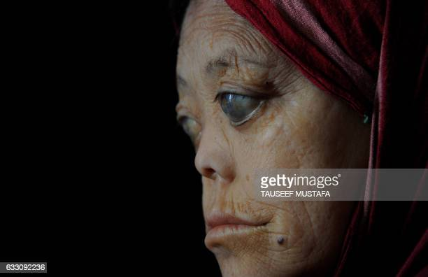 TOPSHOT Sakina a leprosy patient sits in her room at the leprosy hospital in downtown Srinagar on January 302017 World Leprosy Day is observed on...