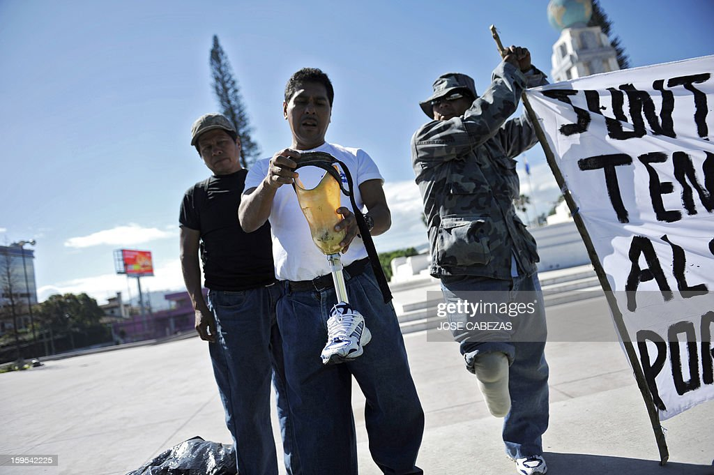 A Salvadorean veteran of the civil war (1980 to 1992) fixes a prosthesis before a march in San Salvador, on January 15, 2013, on the 21st. anniversay of the peace agreements. Veterans marched to demand the pay of higher pensions. AFP PHOTO/ Jose CABEZAS