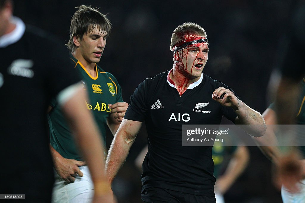 Sam Cane of New Zealand has blood streming off from his head during The Rugby Championship match between the New Zealand All Blacks and the South African Springboks at Eden Park on September 14, 2013 in Auckland, New Zealand.