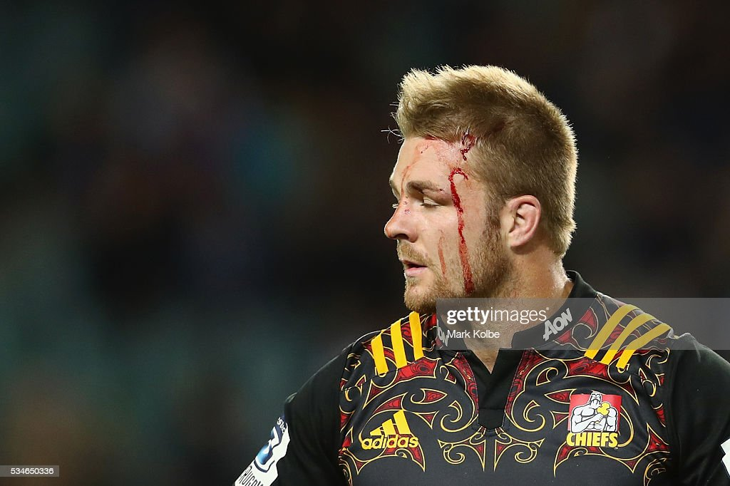 <a gi-track='captionPersonalityLinkClicked' href=/galleries/search?phrase=Sam+Cane&family=editorial&specificpeople=7799288 ng-click='$event.stopPropagation()'>Sam Cane</a> of the Chiefs watches on as he bleeds during the round 14 Super Rugby match between the Waratahs and the Chiefs at Allianz Stadium on May 27, 2016 in Sydney, Australia.