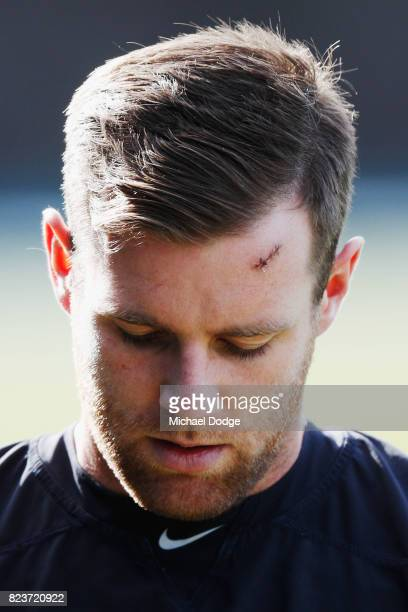 Sam Docherty of the Blues with stictches on his forehead during a Carlton Blues AFL training session at Visy Park on July 28 2017 in Melbourne...