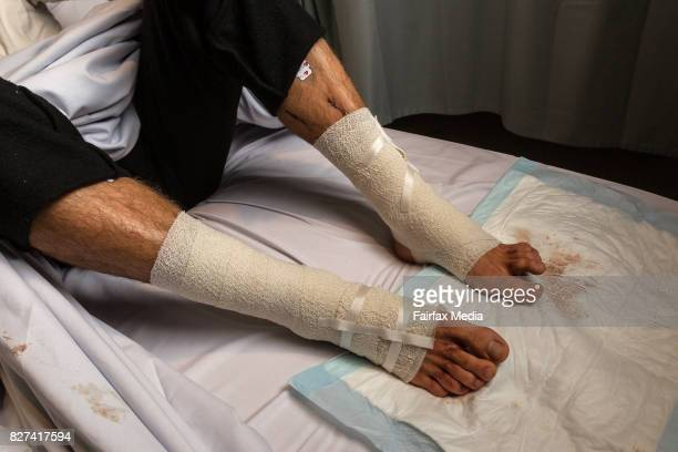 Sam Kanizay is hospitalised after being bitten by flesheating sea fleas at Brighton Beach Melbourne August 6 2107 The fleas attacked Kanizay while he...