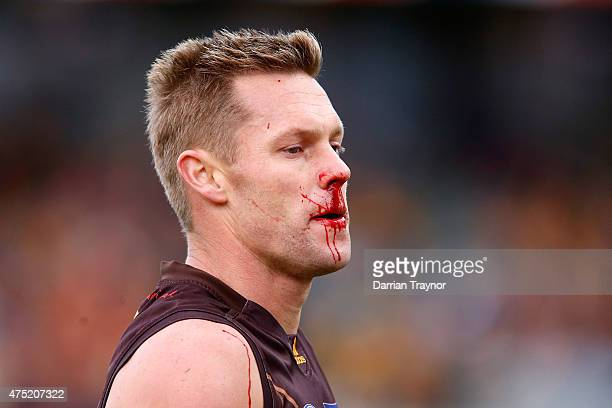 Sam Mitchell of the Hawks comes from the field under the blood rule during the round nine AFL match between the Hawthorn Hawks and the Gold Coast...