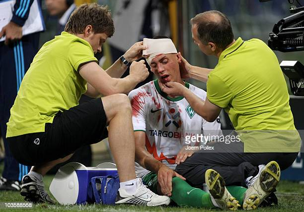Sandro Wagner of Bremen is seen injured during the Uefa Champions League qualifying second leg match between Sampdoria Genua and Werder Bremen at...