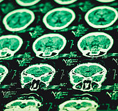 Ct scan close-up image.All personal related data completely removed from image.