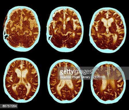 CAT scan of brain, Alzheimer's disease