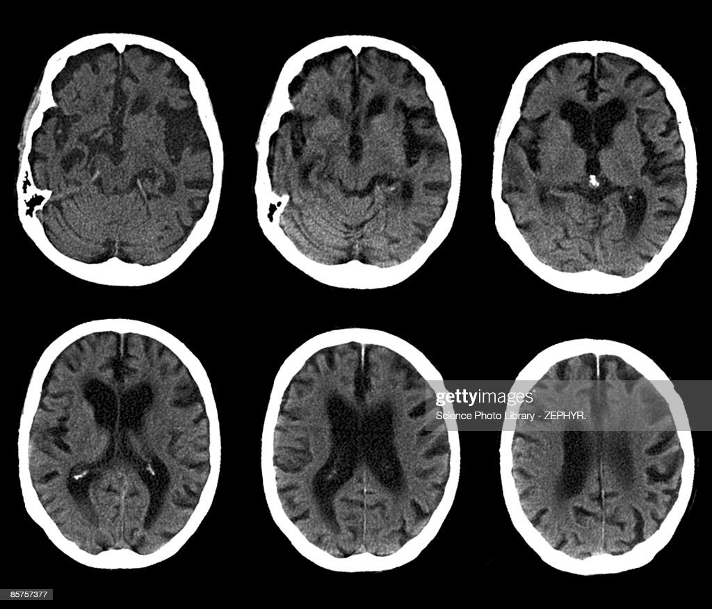CAT scan of brain, Alzheimer's disease (B&W)