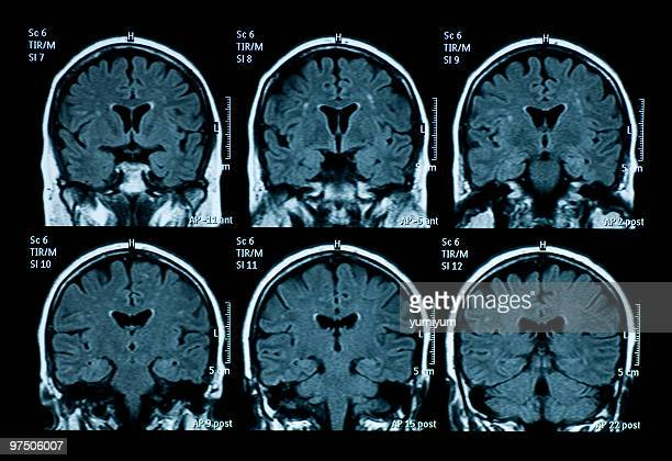 MRI scan of brain