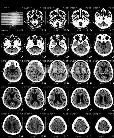 Ctscan Des Gehirns Ohne Kontrastierende Medien Stock-Foto | Thinkstock