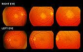 Scan of eyes showing muscular degeneration