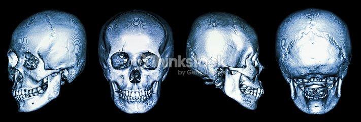 Ctscan Der Menschlichen Schädel 3d Stock-Foto   Thinkstock
