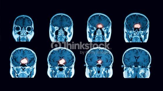 Exploración De Mri Del Cerebro Vista Transversal Foto de stock ...
