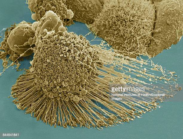 Scanning electron micrograph of an apoptotic HeLa cell.