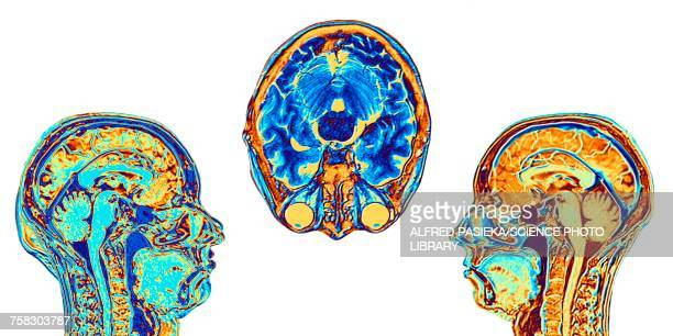 MRI scans of normal brains, illustration