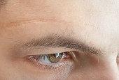 scar on forehead