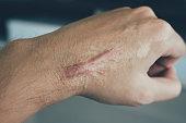Scar on human skin keloid on hand.