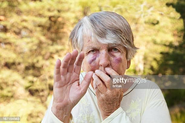 Ängstliche und misshandelt senior Frau mit großen Quetschungen