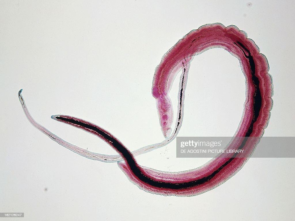 Schistosoma haematobium Platyhelminthes under a microscope