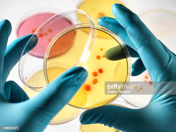 Scientist examining petri dishes in lab